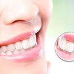 cuidados-implantes-dentales-min