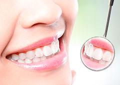 Cuidados de los implantes dentales